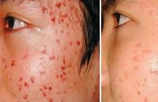 Pimples Cure & Skin Treatment