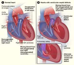 Treatment For Hole In The Heart for Childrens